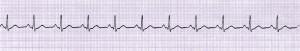 29 normaal kloppend hart